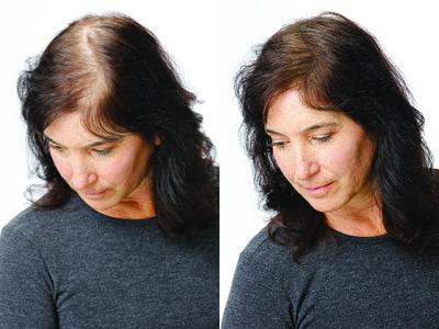 Žena pred a po aplikácii Toppiku