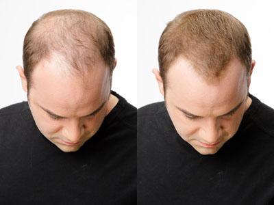 Muž pred a po aplikácii Toppiku