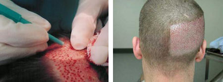 Transplantácia vlasov ihlou