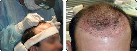 """Transplantácia vlasov metódou """"strip"""""""